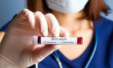 Azərbaycanda daha 78 nəfərdə koronavirus aşkarlandı