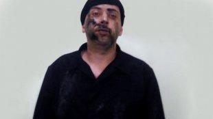 Müdafiə Nazirliyi: Erməni kəşfiyyatçı əsir götürülüb