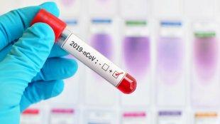 Azərbaycanda daha 27 nəfərdə koronavirus aşkarlandı