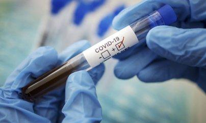 İranda son sutkada koronavirusdan 64 nəfər vəfat edib